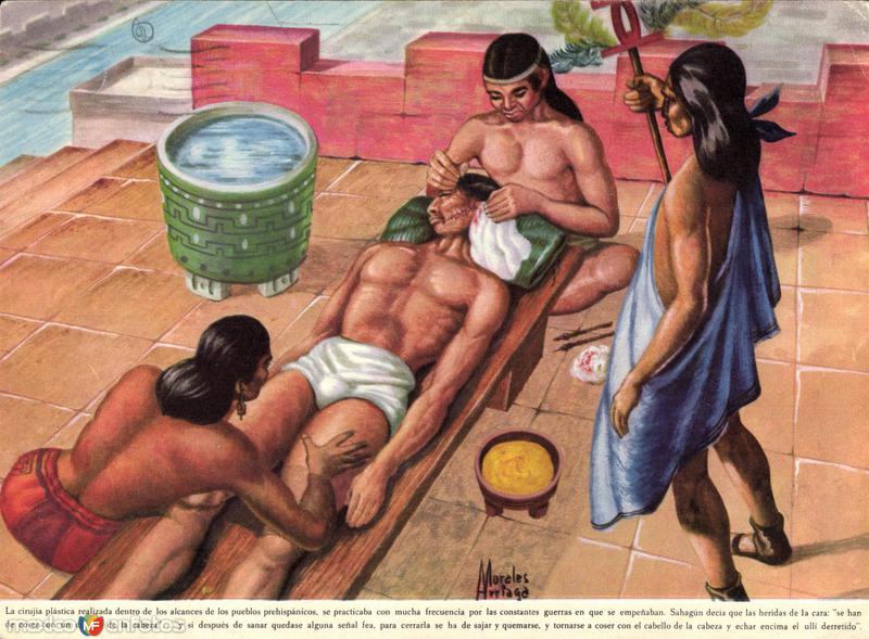 Medicina prehispánica: cirugía plástica