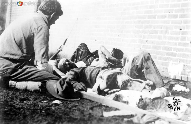 Heridos durante la batalla de Ciudad Juárez (Bain News Service, 1911)
